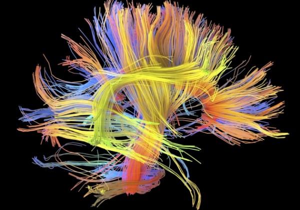 Британские ученые мозг успешного человека отличается по устройству