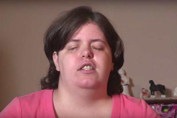 Девушка с редким психическим заболеванием ослепила себя по совету врача