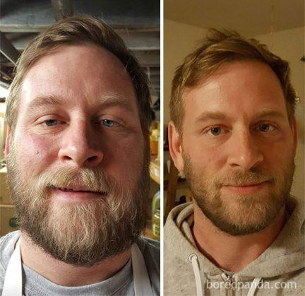 До» и «после». Как люди выглядят спустя несколько месяцев после ...