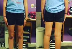 «Идите в магазин сами». Мама ответила директору школы, требовавшему от дочери носить шорты подлиннее
