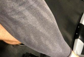 Мужчина на своей руке показал, почему шрамы не потеют. На Reddit его окрестили сверхчеловеком