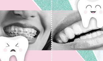 Революция в стоматологии: как выровнять зубы без брекетов? Показываем на гифках