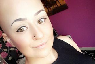 «Лысой — увереннее». Британка лишилась волос в 21 год, но обрела кое-что получше пышной шевелюры