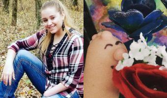 Рука без пальцев по имени Фред. 16-летняя блогерша превратила свою инвалидность в способ рассказывать истории