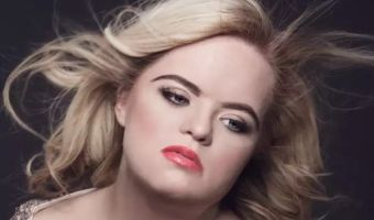 Девушка с синдромом Дауна выиграла конкурс красоты среди подростков. Она не считает себя особенной