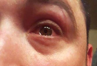 Паучьи кишки — не лучшее средство для глаз. В этом убедился парень, который втёр убитого арахнида в роговицу
