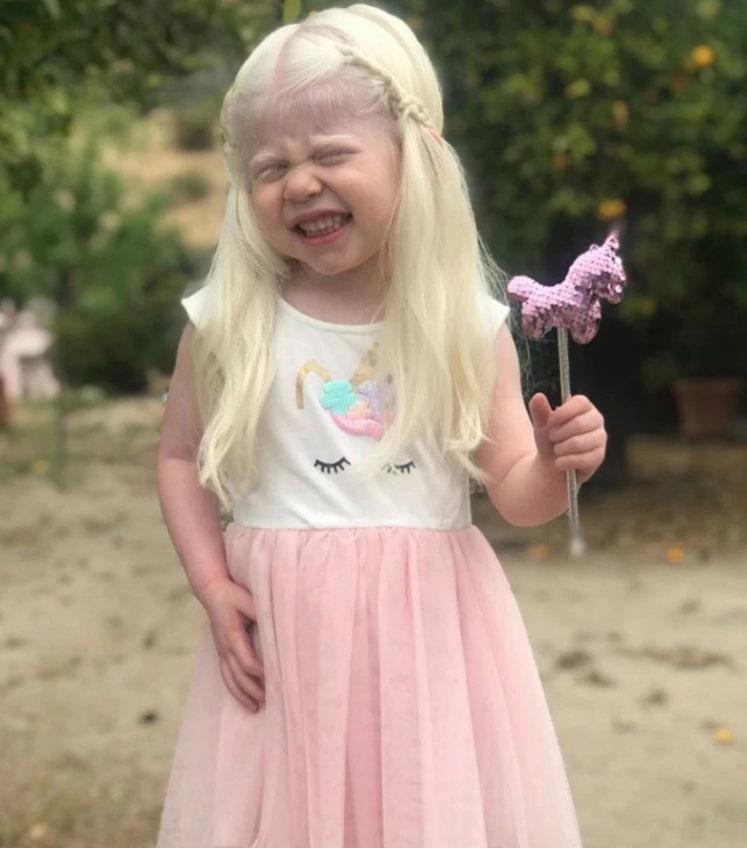 У девочки оказался ген альбинизма, который передается по наследству