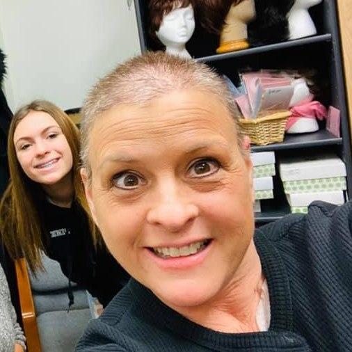 Эми после химиотерапии
