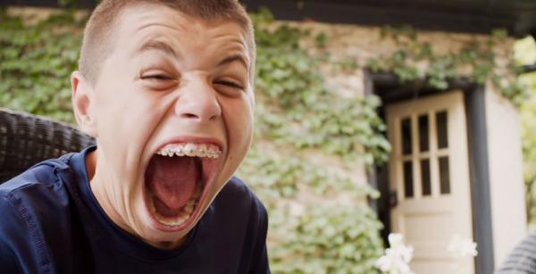 Исаак Джонсон, 14-летний подросток из города Блумингтон, штат Индиана, США. Мальчик обрёл мировую известность из-за особенности строения своего рта.