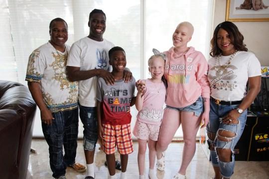 Младшая сестра с альбинизмом помогла старшей сестре преодолеть застенчивость