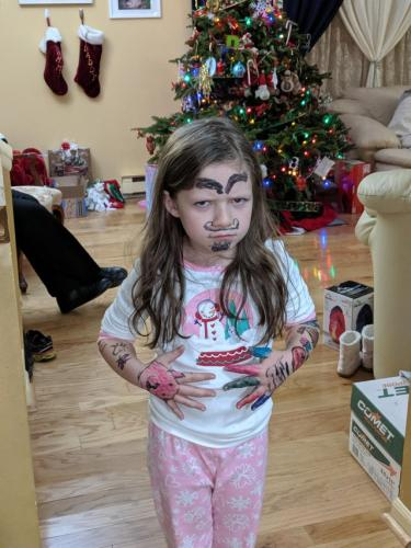 Девочка опробовала на себе новые маркеры и напугала родителей. Художества смешные, а их последствия - страшные