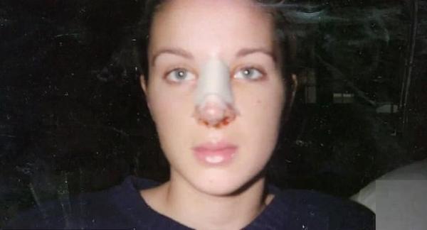 Девочку дразнили из-за носа, и она решилась пластику. Но вышло ещё хуже, а повторная операция стала катасрофой