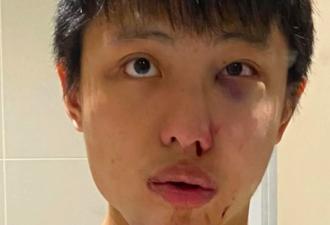 Cтудент из Азии стал жертвой коронавируса, но он здоров. Виноваты глупые стереотипы, от которых нет вакцины