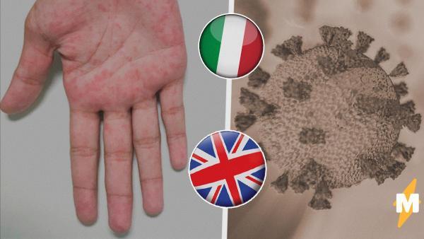 В Европе участились случаи заболевания, похожего на синдром Кавасаки. Врачи думают, что его вызывает COVID-19