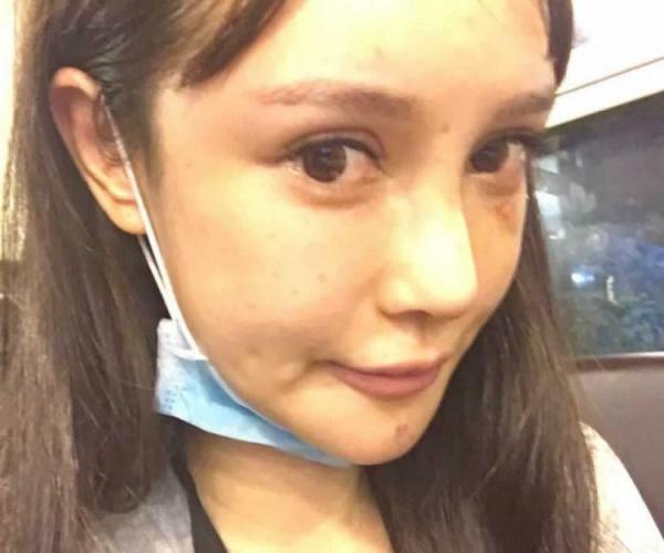 Девушка стала лицом пластической хирургии, и для этого пошла на 100 операций. А теперь она сама себя не узнаёт