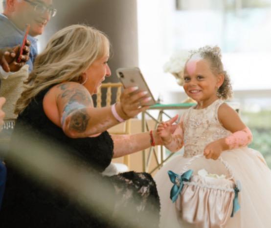 Девочка родилась с двухцветной кожей, и люди таращат на неё глаза. Но она в восторге - её внешность уникальна