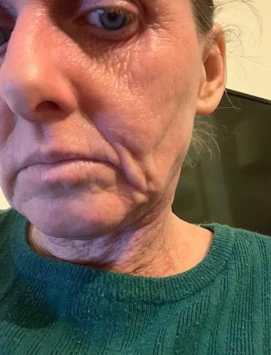 Женщина всю жизнь лечила экзему и думала, что выздоровела. Но отказ от лекарств вмиг состарил её на 20 лет
