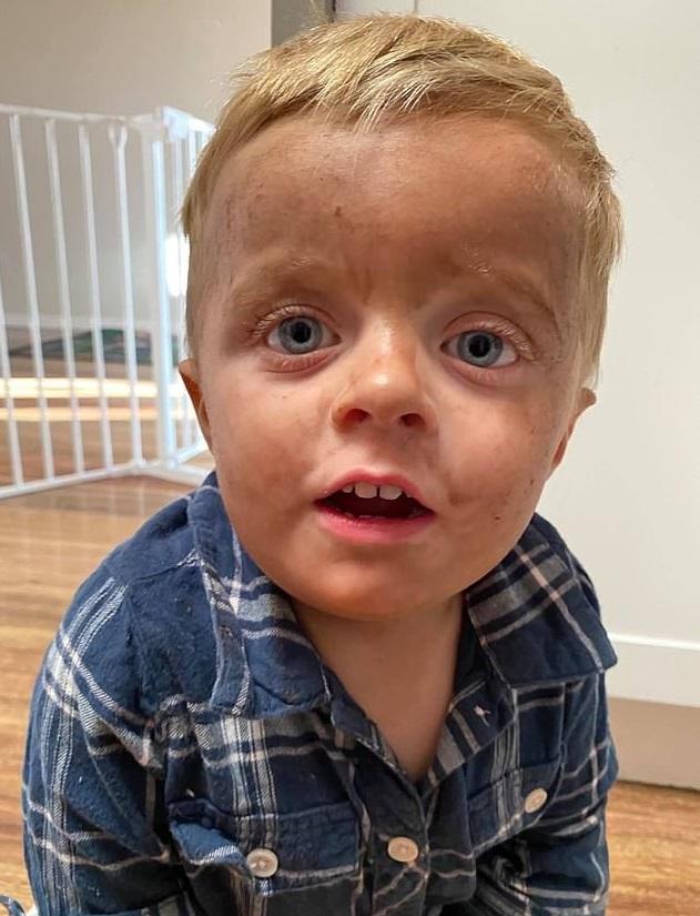 Мальчик умылся и его не узнала собственная мать. Он случайно сменил цвет кожи,