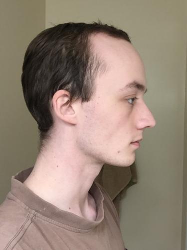 Девушка показала, как выглядела два года назад. Она была лысеющим парнем, но гормоны сотворили настоящее чудо