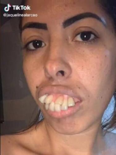 Жена дантиста показала, какой была её улыбка раньше. Людей испугал этот прикус акулы, но глазам они верили зря