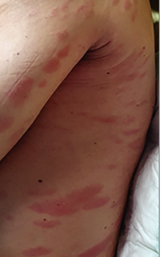 У пациентов с коронавирусом в Коммунарке выступают пятна на коже.
