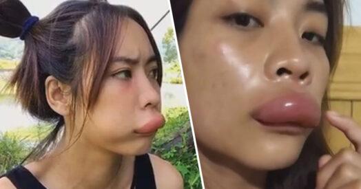 Девушка увеличила губы в 10 раз, но это не бьюти-процедура, а карма. Не стоило воровать мёд у пчёл