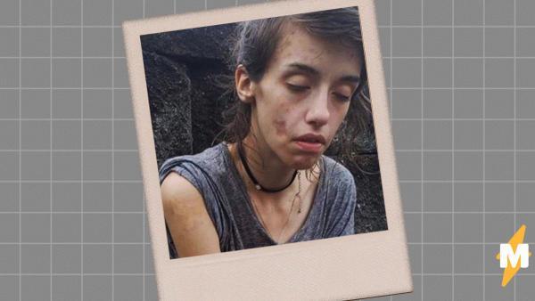 """""""Моя мама сделала это фото, когда спасла меня"""". Девушка едва не погибла, живя на улице, но теперь её не узнать"""