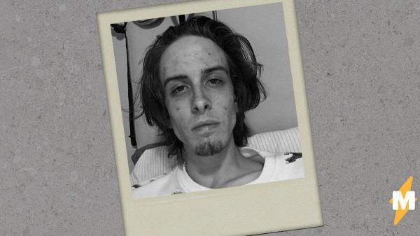 """Парень двумя снимками показал, как его изменила жизнь без наркотиков. И в фото """"после"""" влюбились тысячи людей"""