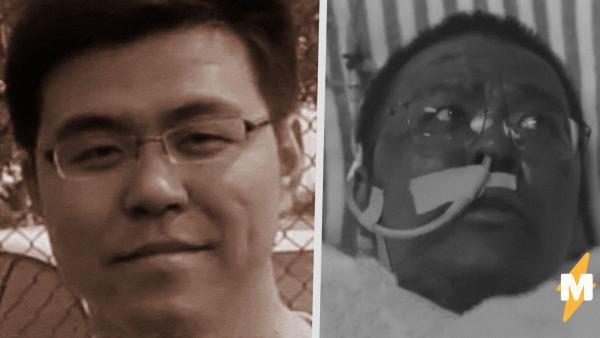 """В Ухане умер врач со странной """"побочкой"""". Лекарства изменили его внешность, но не спасли от COVID-19"""