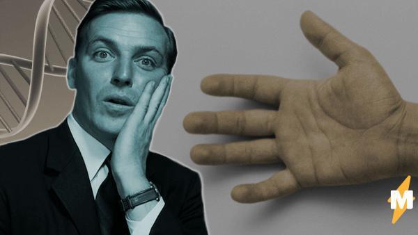 Парень смог удивить людей своим пальцем. И повторить такой трюк мало кто сможет - для этого нужна особая ДНК