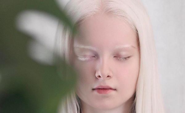 Блогер рассказал, как трудно живётся альбиносам. Но людям его не жаль, ведь такая внешность ранит их чувства