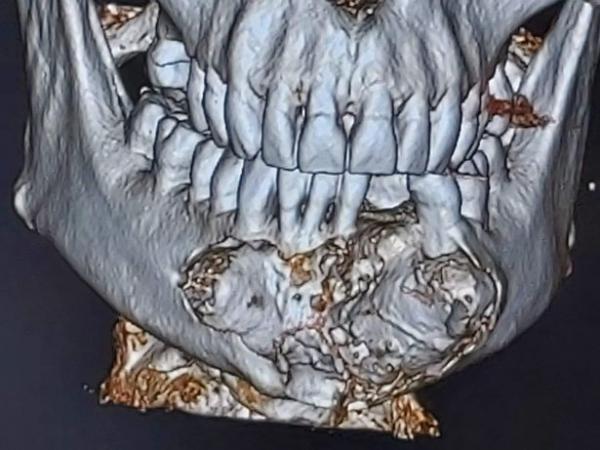 Что будет, если не посещать дантиста 27 лет.