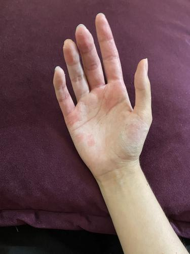 Девушка показала свою руку после тяжёлого случая экземы. Смотреть нелегко, но люди благодарны за фото