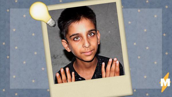 Школьник из Индии - босс в видеоиграх и чудо-геймер. Чтобы понять, почему, достаточно взглянуть на его пальцы