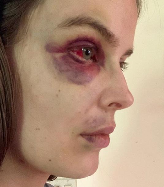 Модель призналась в фото, как выглядит после приступа волчанки. И доказала: красота бывает дьявольски страшной