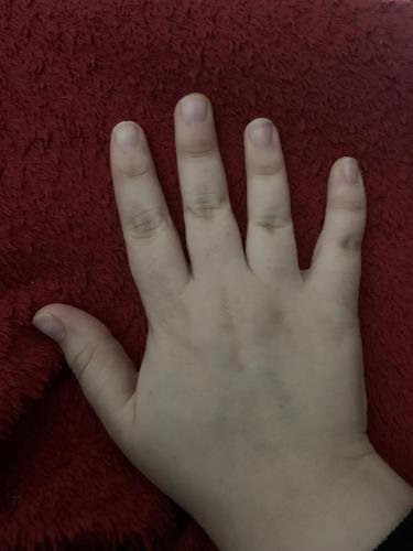 Парень показал людям суставы на руке и сломал им глаза. Стоит ему сжать кулак, как начинается магия (рептилий)