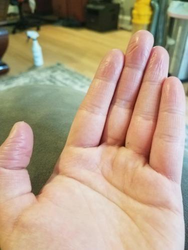 Как живёт парень, у которого нет узоров на пальцах? Идеальный преступник, но самый ненужный человек в быту