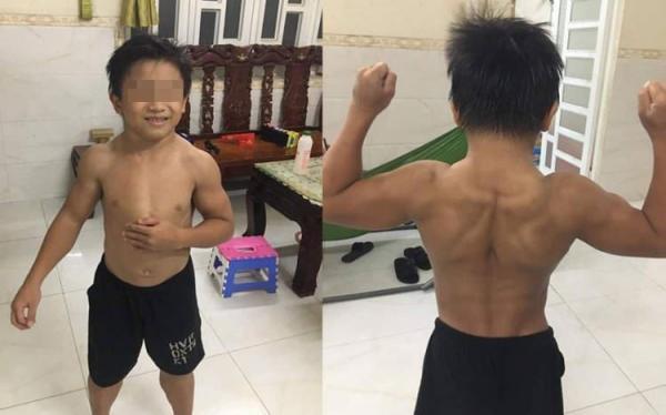 Десятилетка с синдромом Супермена родился с мышцами, как у Горы, но есть нюанс. Его диагноза не существует