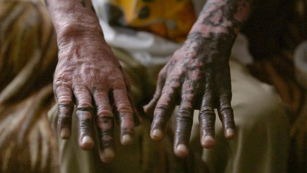 Мужчина дважды сменил цвет кожи и один раз расу, но не по своей воле. И причину этого не знают даже врачи
