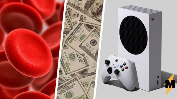 Диабетики узнали цену Xbox Series S и расстроились. Ведь спасение своей жизни обходится им дороже, чем консоль