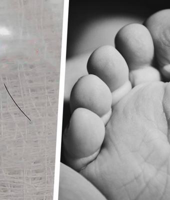 Хирург показал, что извлек из ноги ребёнка. Если бы занозы были людьми, эта стала бы Фредди Крюгером