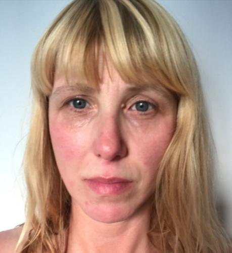 Женщина показала, что происходит с лицом спустя 36 часов без сна. Спойлер: это способ быстро постареть