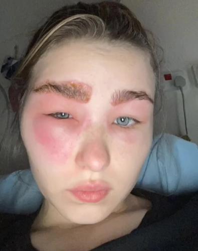 Девушка записалась на ламинирование бровей, но результат поверг в шок. Из красотки она превратилась в циклопа
