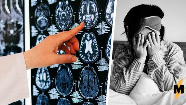 Врачи были уверены, что у девушки рак, но её мозг захватил ленточный червь. Наука не знает, как он туда попал