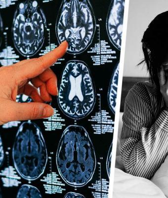 Врач был уверен, что у девушки рак, но её мозг захватил ядовитый пришелец. Наука не знает, как он туда попал
