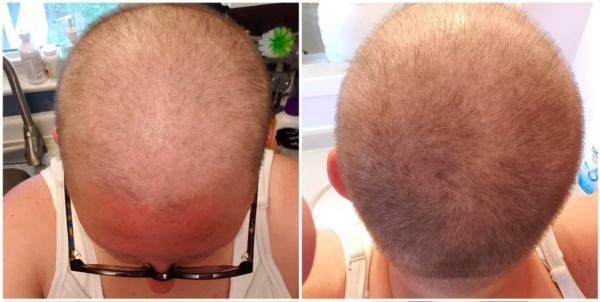 Мужчина показал свою голову после химиотерапии. И у людей море вопросов о том, как он вернул свои волосы