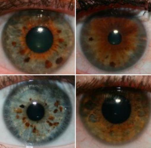 Девушка показала фото глаз всей своей семьи и случайно доказала: они все пришельцы.