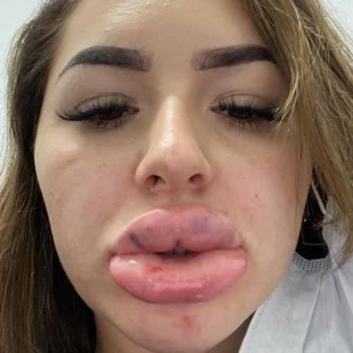 Девушка хотела губы, мимо которых не пройдёт ни один мужчина. Так и вышло, ведь теперь на них можно плавать