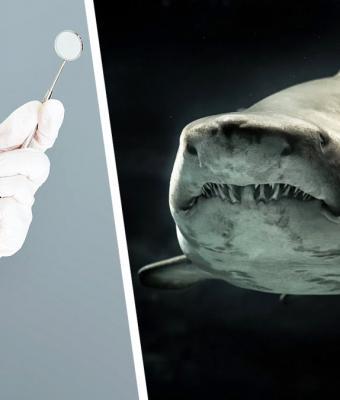 Люди показывают зубы до установки виниров. От фото больно, и дантистам страшно: они знают, чем это грозит