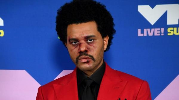 The Weeknd выступил на AMA в бинтах и обеспокоил зрителей. Нет, он не попал в аварию и не сделал операцию